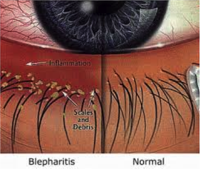 List Of Synonyms And Antonyms Of The Word Eyelash Mites